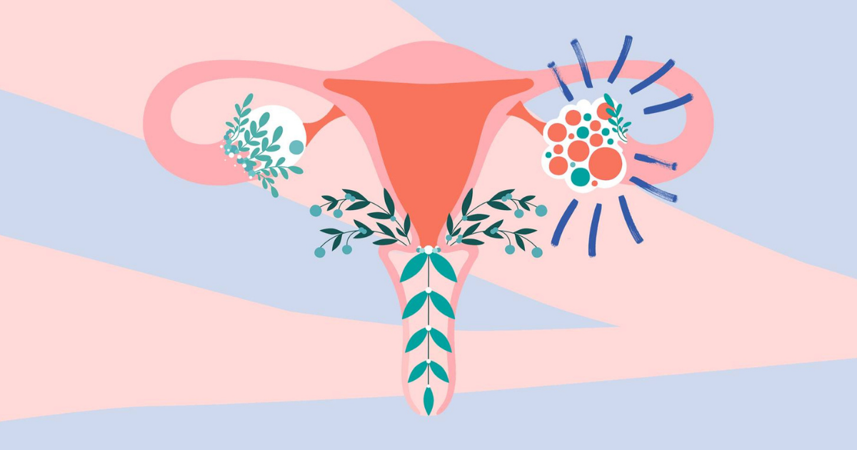 symptoms, causes and treatment for polycystic ovary syndrome (PCOS)